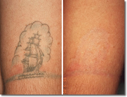 Tattoo And Pigment Removal Desi Dermatology