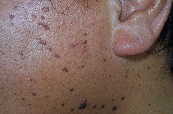 Medical Derm 171 Desi Dermatology