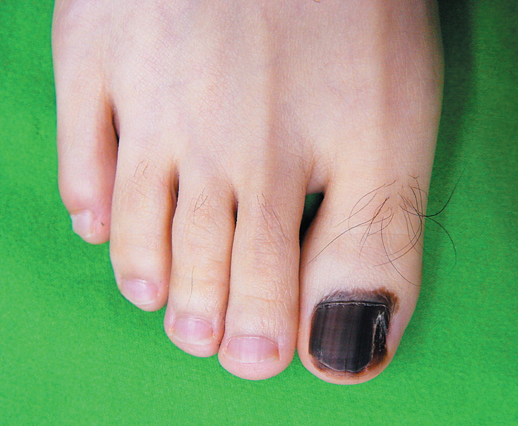 skin cancer of the nail « Desi Dermatology